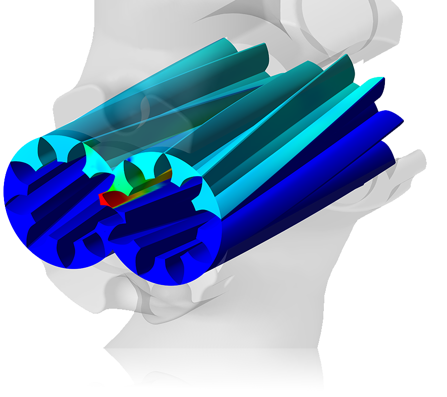 CFD Analysis of External Gear Pumps: Vizualisation of pressure distribution